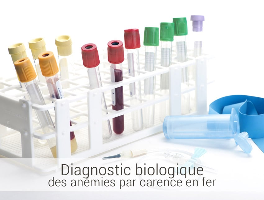 diagnostic biologique des anémies par carence en fer
